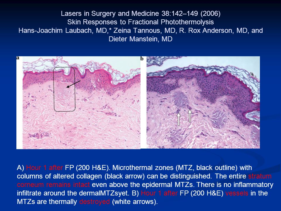 Lasers in Surgery and Medicine 38:142–149 (2006) Skin Responses to Fractional Photothermolysis Hans-Joachim Laubach, MD,* Zeina Tannous, MD, R. Rox An