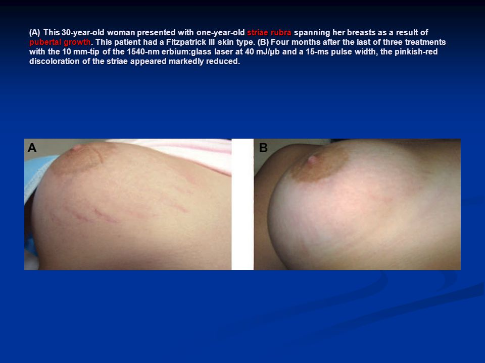 (A) This 30-year-old woman presented with one-year-old striae rubra spanning her breasts as a result of pubertal growth. This patient had a Fitzpatric