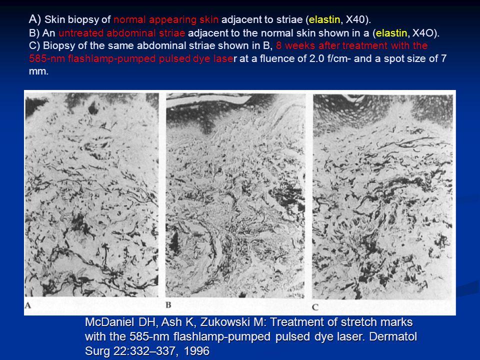 Lazer - stria Birden fazla etkili lazer var Birden fazla etkili lazer var Striaların erken dönemde tedavi edilmesi önemlidir Striaların erken dönemde tedavi edilmesi önemlidir Koyu tenli kişilerde pigmentasyon değişikliklerine dikkat etmek gerekir Koyu tenli kişilerde pigmentasyon değişikliklerine dikkat etmek gerekir Uzun süreli iyileşmeler için yeni uygulamalar gerekebilir Uzun süreli iyileşmeler için yeni uygulamalar gerekebilir Fractional nonablatif lazer daha etkili gibi görünmektedir Fractional nonablatif lazer daha etkili gibi görünmektedir