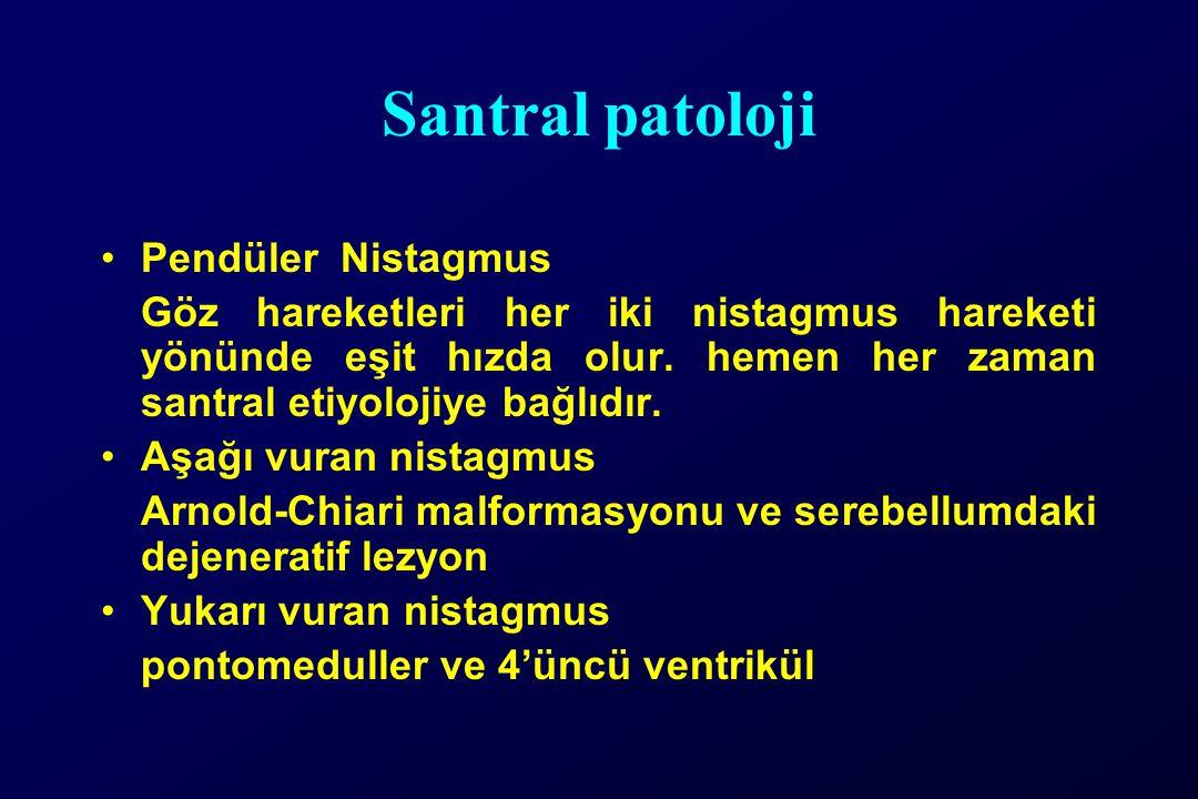 Santral patoloji Pendüler Nistagmus Göz hareketleri her iki nistagmus hareketi yönünde eşit hızda olur. hemen her zaman santral etiyolojiye bağlıdır.