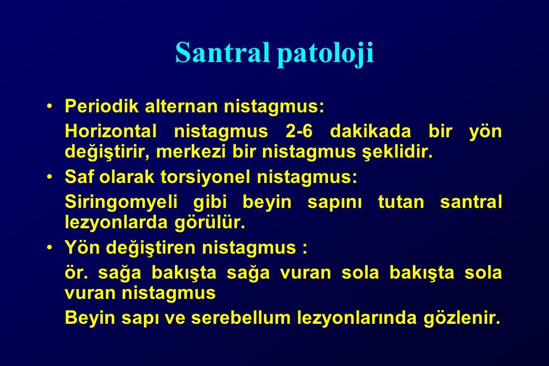 Santral patoloji Periodik alternan nistagmus: Horizontal nistagmus 2-6 dakikada bir yön değiştirir, merkezi bir nistagmus şeklidir.