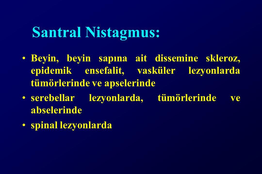Santral Nistagmus: Beyin, beyin sapına ait dissemine skleroz, epidemik ensefalit, vasküler lezyonlarda tümörlerinde ve apselerinde serebellar lezyonlarda, tümörlerinde ve abselerinde spinal lezyonlarda