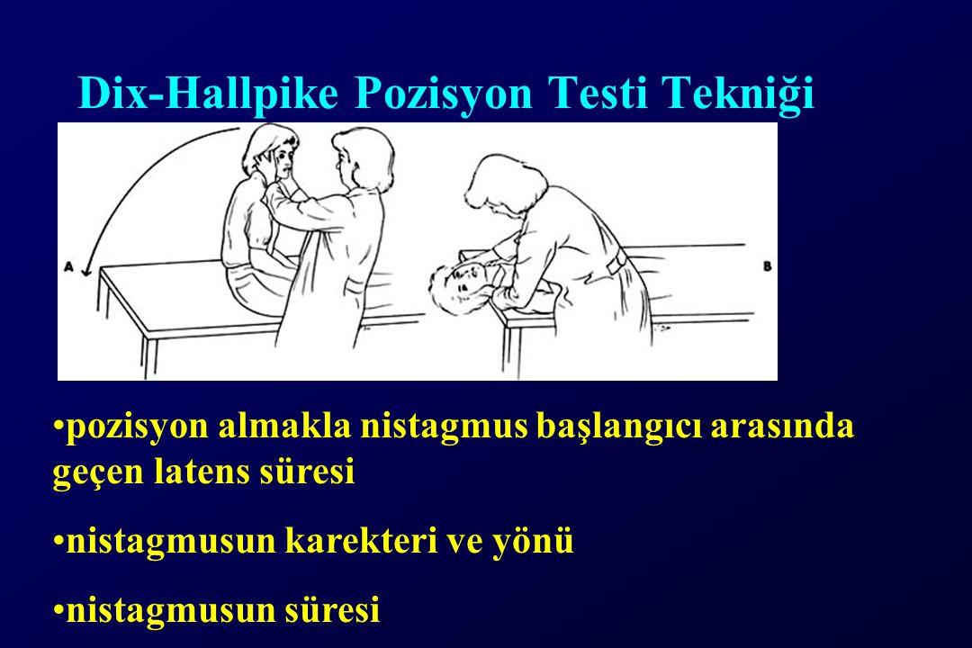Dix-Hallpike Pozisyon Testi Tekniği pozisyon almakla nistagmus başlangıcı arasında geçen latens süresi nistagmusun karekteri ve yönü nistagmusun süres