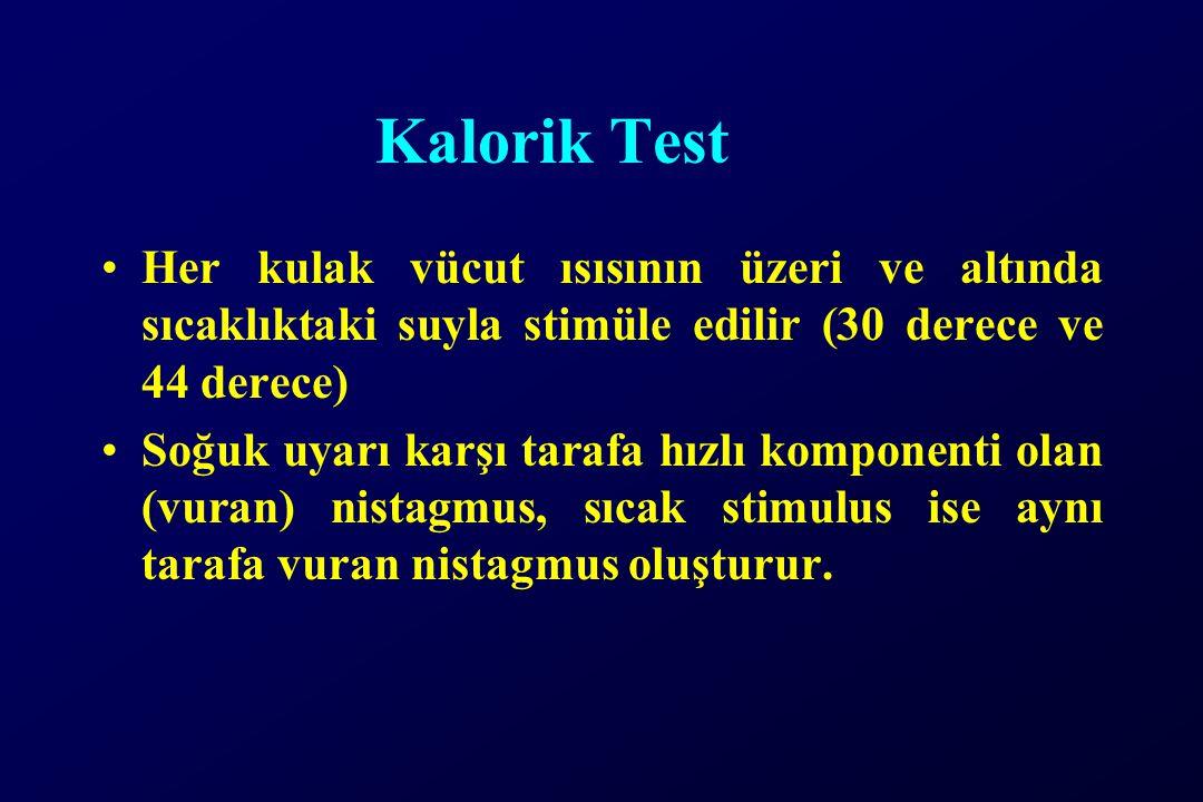 Kalorik Test Her kulak vücut ısısının üzeri ve altında sıcaklıktaki suyla stimüle edilir (30 derece ve 44 derece) Soğuk uyarı karşı tarafa hızlı kompo