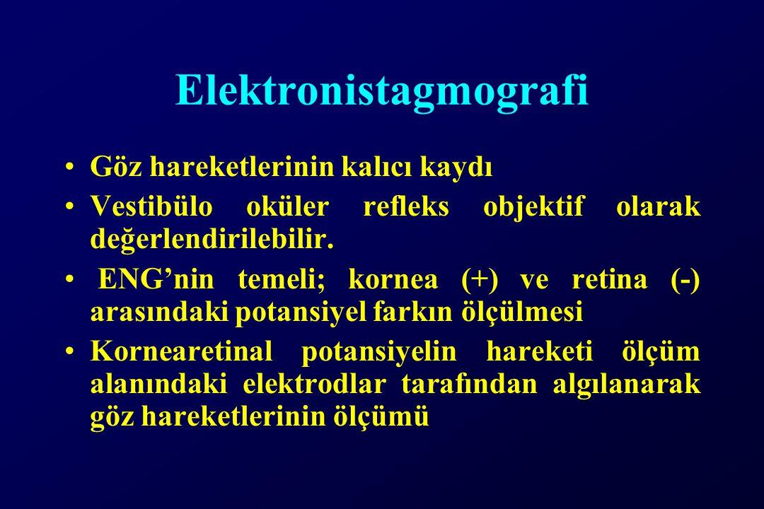 Elektronistagmografi Göz hareketlerinin kalıcı kaydı Vestibülo oküler refleks objektif olarak değerlendirilebilir. ENG'nin temeli; kornea (+) ve retin