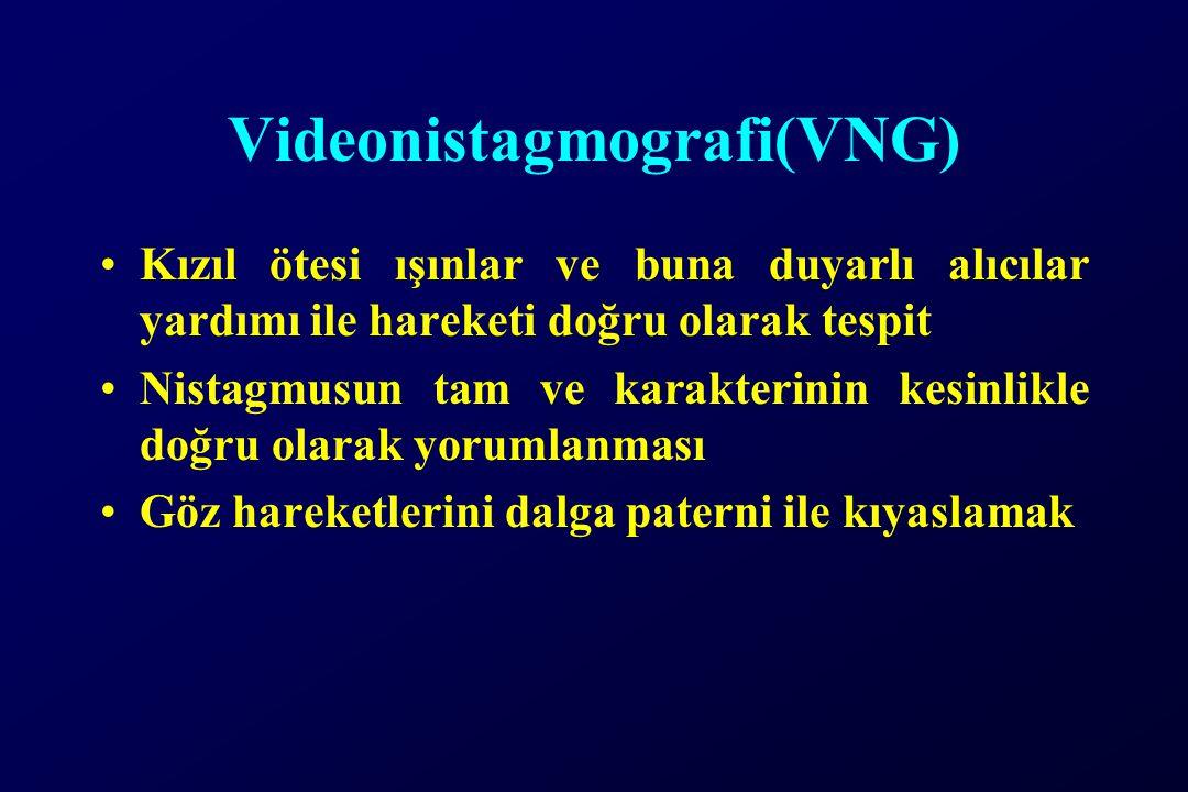 Videonistagmografi(VNG) Kızıl ötesi ışınlar ve buna duyarlı alıcılar yardımı ile hareketi doğru olarak tespit Nistagmusun tam ve karakterinin kesinlikle doğru olarak yorumlanması Göz hareketlerini dalga paterni ile kıyaslamak