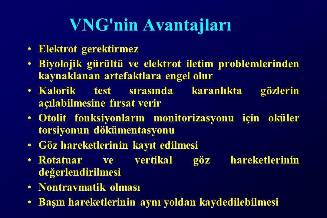 VNG'nin Avantajları Elektrot gerektirmez Biyolojik gürültü ve elektrot iletim problemlerinden kaynaklanan artefaktlara engel olur Kalorik test sırasın