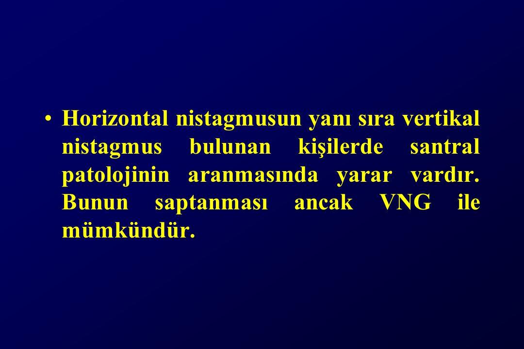 Horizontal nistagmusun yanı sıra vertikal nistagmus bulunan kişilerde santral patolojinin aranmasında yarar vardır. Bunun saptanması ancak VNG ile müm