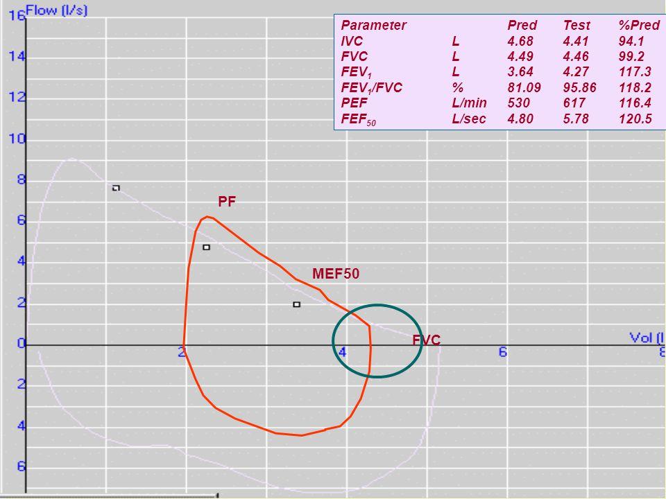 PF MEF50 FVC ParameterPredTest%Pred IVCL4.684.4194.1 FVCL4.494.4699.2 FEV 1 L3.644.27117.3 FEV 1 /FVC%81.0995.86118.2 PEFL/min530617116.4 FEF 50 L/sec4.805.78120.5