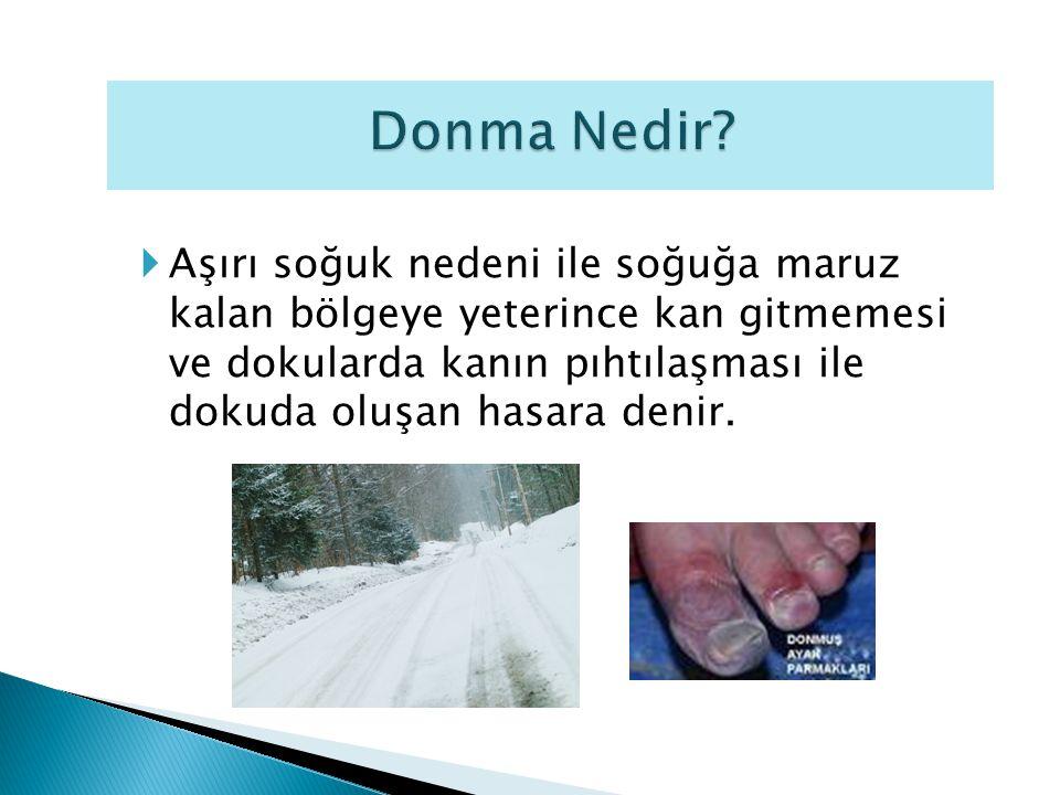 Aşırı soğuk nedeni ile soğuğa maruz kalan bölgeye yeterince kan gitmemesi ve dokularda kanın pıhtılaşması ile dokuda oluşan hasara denir.