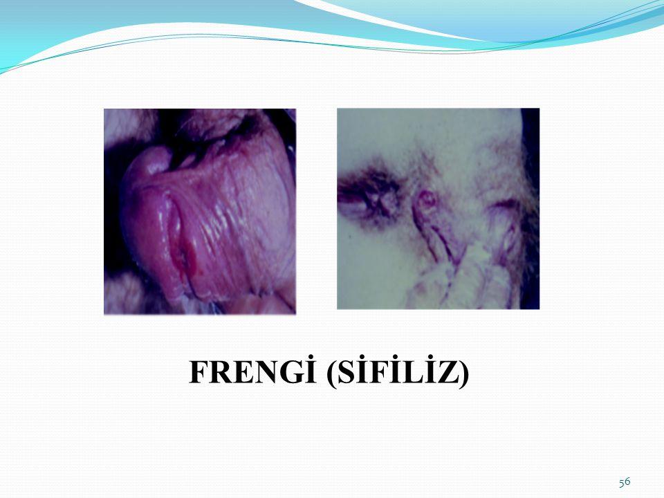 FRENGİ (SİFİLİZ) 56