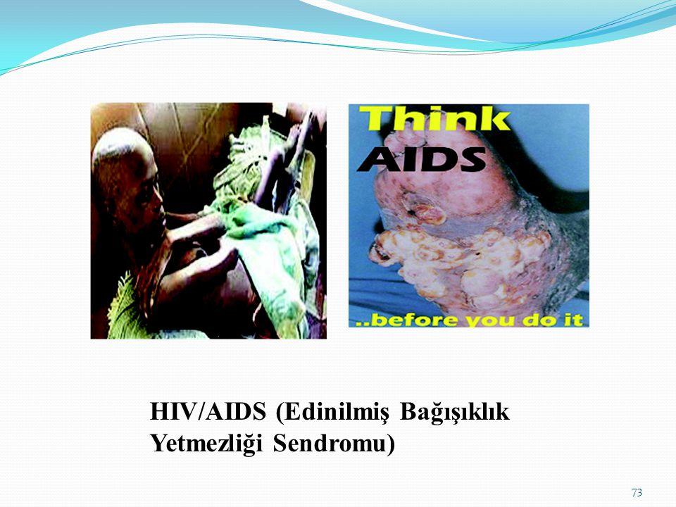HIV/AIDS (Edinilmiş Bağışıklık Yetmezliği Sendromu) 73