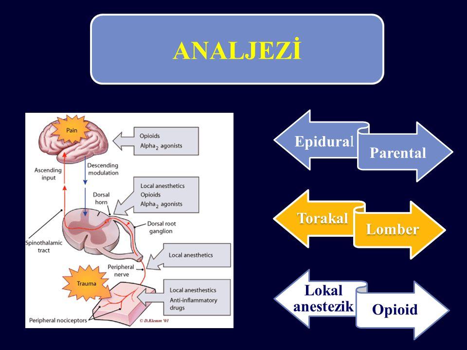 Epidural Parental ANALJEZİ Torakal Lomber Lokal anestezik Opioid