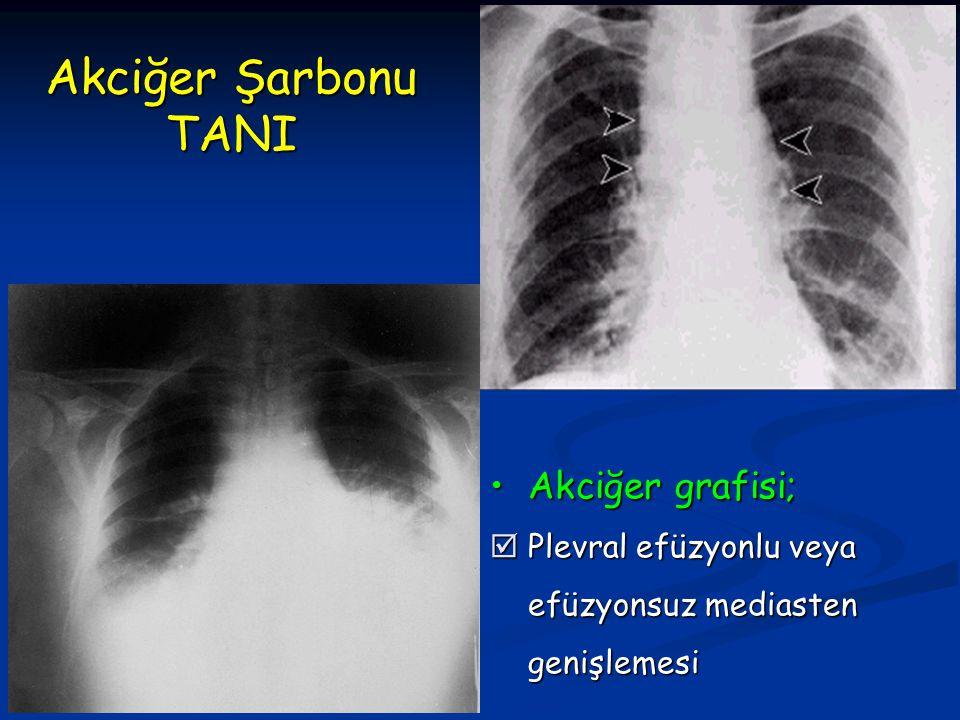 Akciğer grafisi;Akciğer grafisi;  Plevral efüzyonlu veya efüzyonsuz mediasten genişlemesi Akciğer Şarbonu TANI