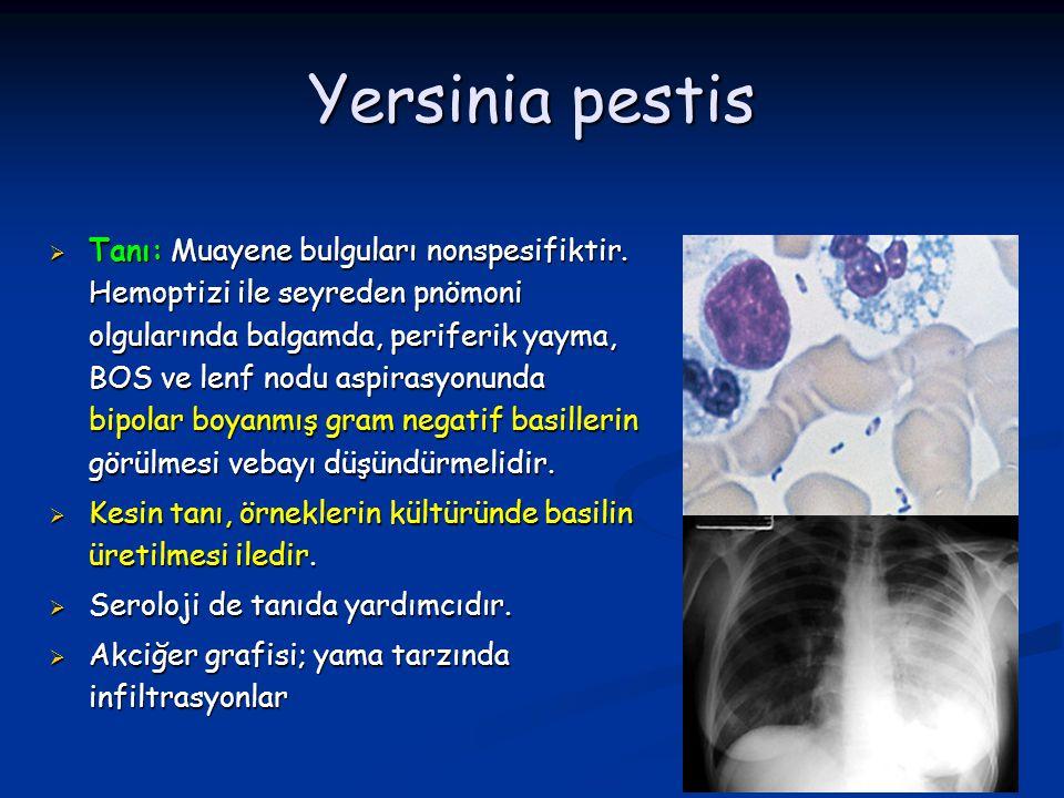 Yersinia pestis  Tanı: Muayene bulguları nonspesifiktir. Hemoptizi ile seyreden pnömoni olgularında balgamda, periferik yayma, BOS ve lenf nodu aspir