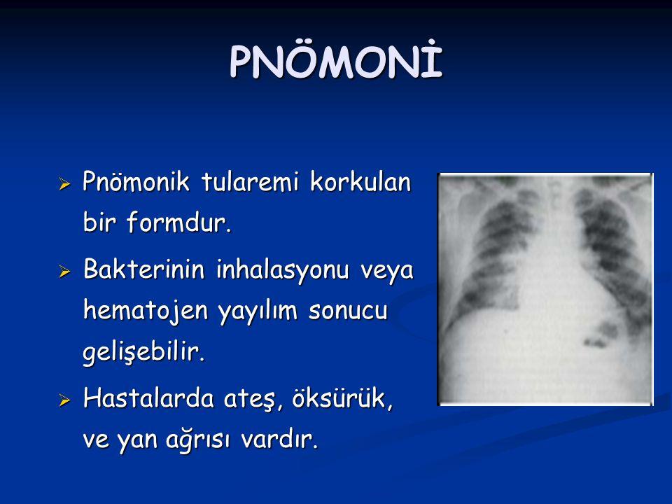 PNÖMONİ  Pnömonik tularemi korkulan bir formdur.  Bakterinin inhalasyonu veya hematojen yayılım sonucu gelişebilir.  Hastalarda ateş, öksürük, ve y