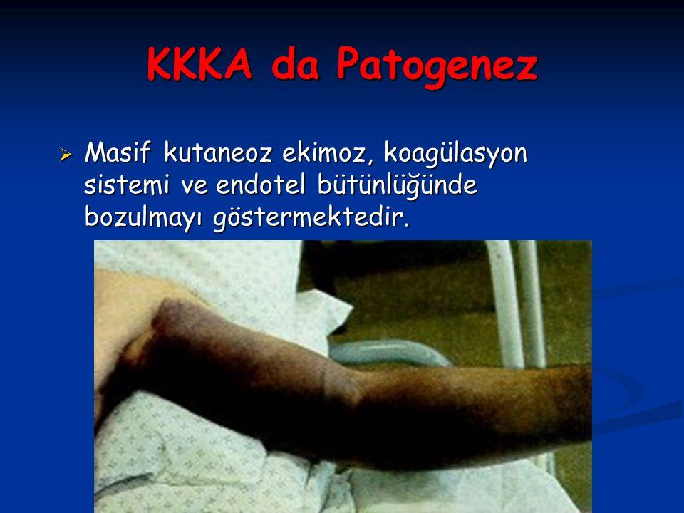 KKKA da Patogenez  Masif kutaneoz ekimoz, koagülasyon sistemi ve endotel bütünlüğünde bozulmayı göstermektedir.