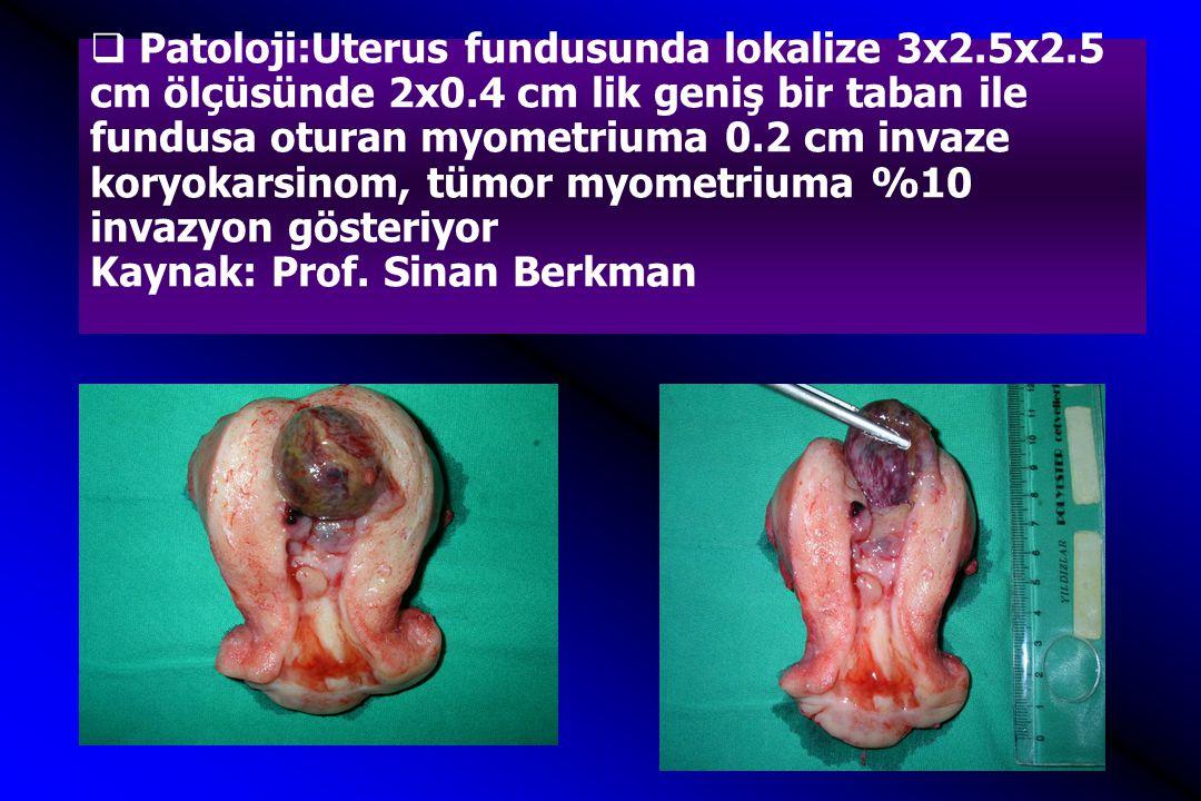  Patoloji:Uterus fundusunda lokalize 3x2.5x2.5 cm ölçüsünde 2x0.4 cm lik geniş bir taban ile fundusa oturan myometriuma 0.2 cm invaze koryokarsinom,