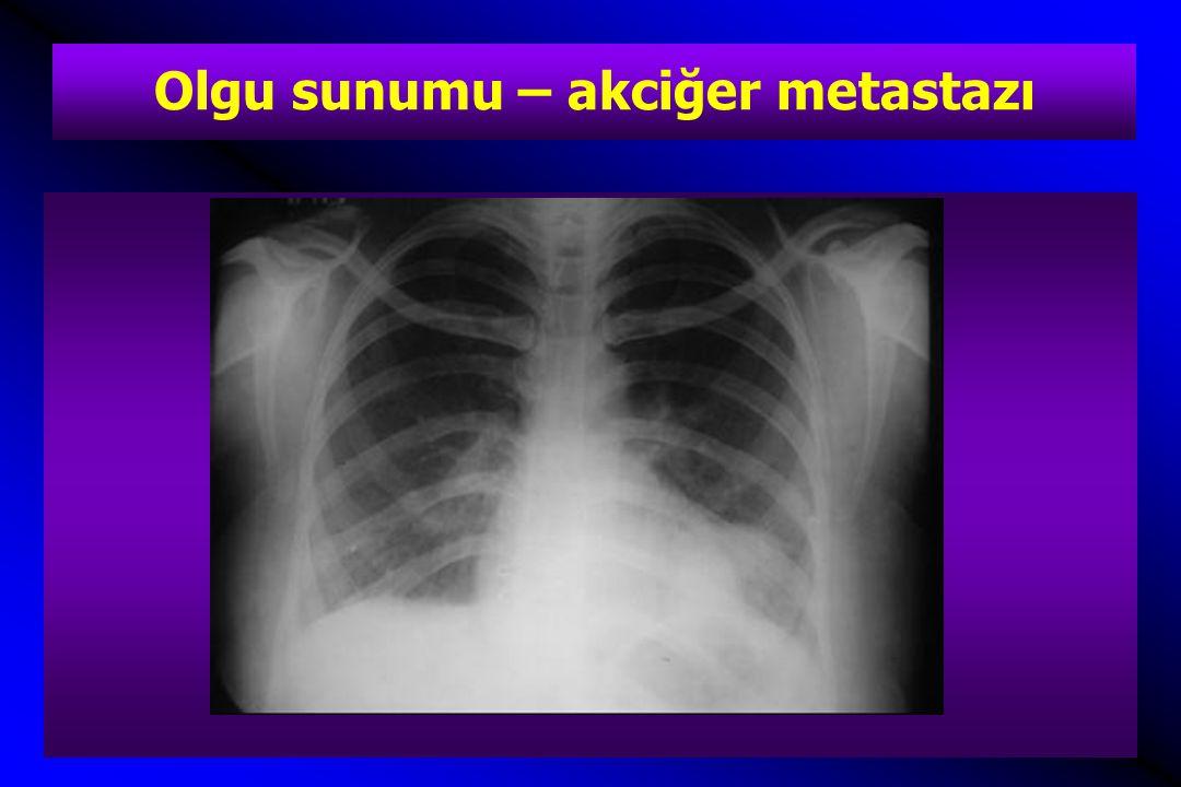 Olgu sunumu – akciğer metastazı