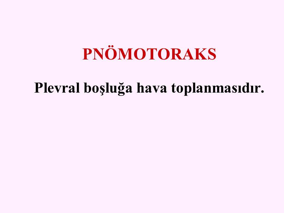 SEKONDER TORAKS TRAVMALARI  Pnömotoraks  Hemotoraks  Tansiyon pnömotoraks  Pulmoner kontüzyon