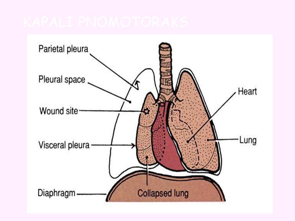 Kapalı Pnömotoraksta Atmosfer havası bronş, bronşiyal yada alveol gibi solunumla ilgili internal yapılardan plevral alan girer ancak çıkmaz.