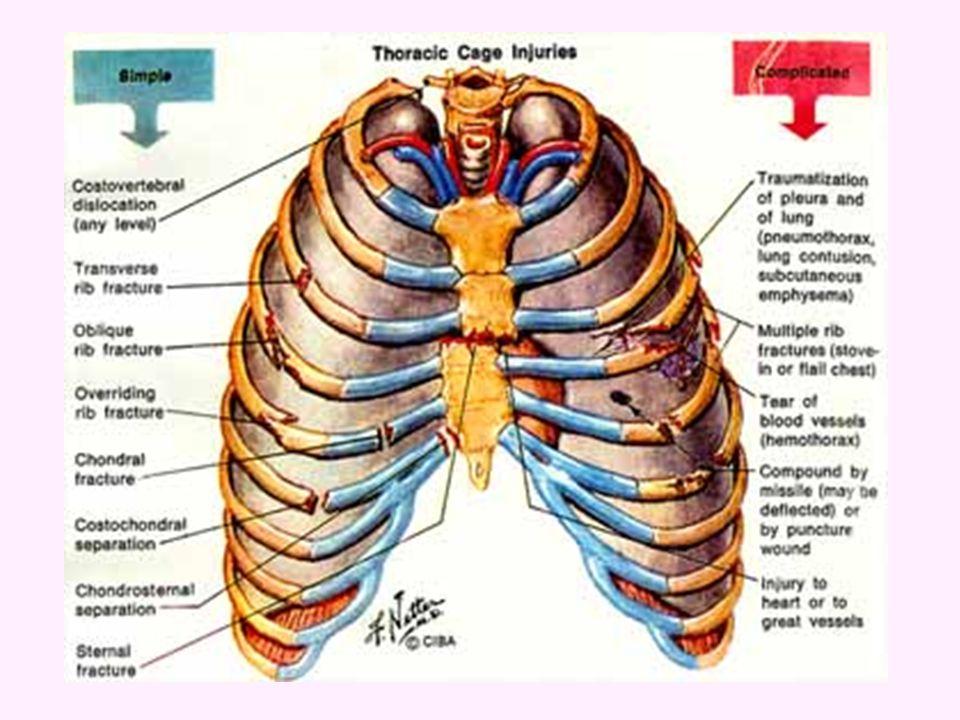 BÖLÜMLERİ 1.Sağ akciğer, viseral ve pariyetal plevradan oluşan Sağ Pulmoner Alan 2.Sol akciğer, viseral ve pariyetal plevradan oluşan Sol Pulmoner Alan 3.Perikardiyak Alan 4.Özofagus, trakea, büyük damarlar ve kalbin yer aldığı iki akciğer arasında kalan Mediastinal Alan