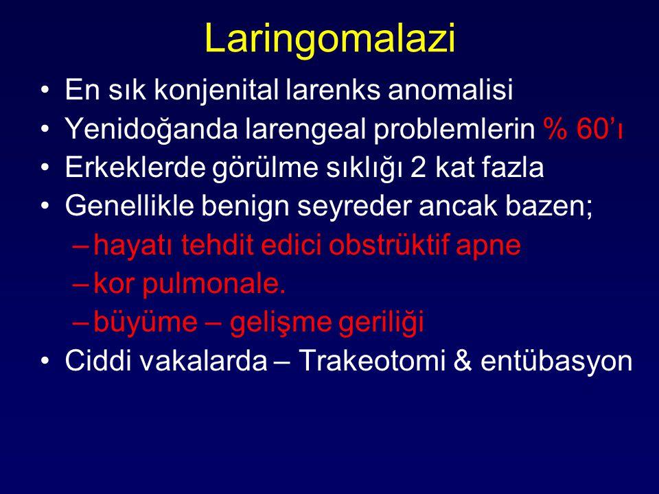 Laringomalazi En sık konjenital larenks anomalisi Yenidoğanda larengeal problemlerin % 60'ı Erkeklerde görülme sıklığı 2 kat fazla Genellikle benign s