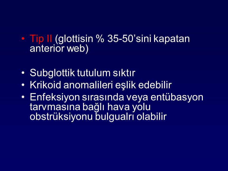 Tip II (glottisin % 35-50'sini kapatan anterior web) Subglottik tutulum sıktır Krikoid anomalileri eşlik edebilir Enfeksiyon sırasında veya entübasyon
