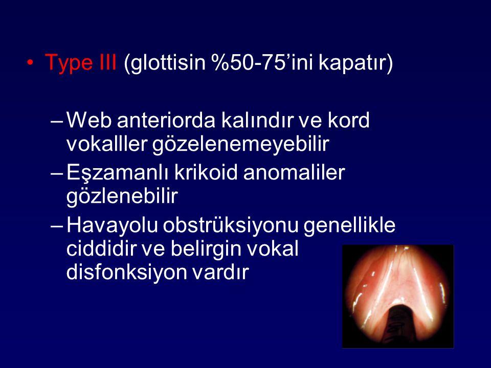 Type III (glottisin %50-75'ini kapatır) –Web anteriorda kalındır ve kord vokalller gözelenemeyebilir –Eşzamanlı krikoid anomaliler gözlenebilir –Havay