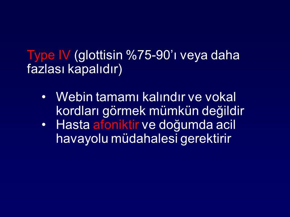 Type IV (glottisin %75-90'ı veya daha fazlası kapalıdır) Webin tamamı kalındır ve vokal kordları görmek mümkün değildir Hasta afoniktir ve doğumda aci