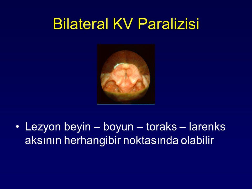 Bilateral KV Paralizisi Lezyon beyin – boyun – toraks – larenks aksının herhangibir noktasında olabilir