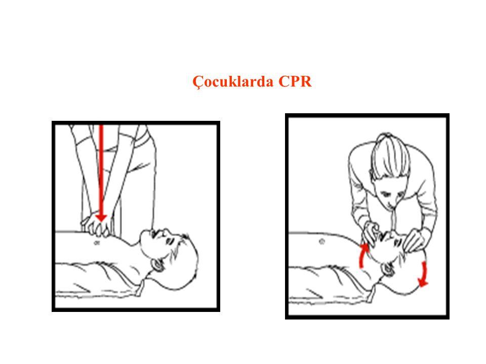 Çocuklarda CPR