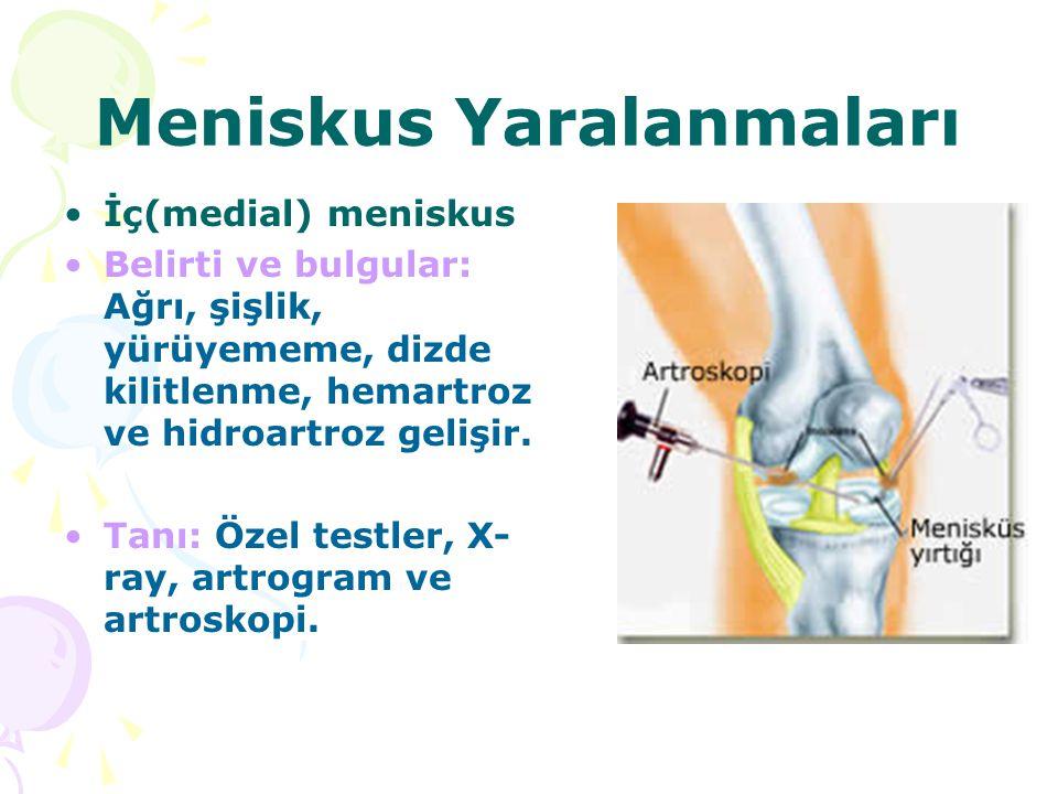 Meniskus Yaralanmaları İç(medial) meniskus Belirti ve bulgular: Ağrı, şişlik, yürüyememe, dizde kilitlenme, hemartroz ve hidroartroz gelişir. Tanı: Öz