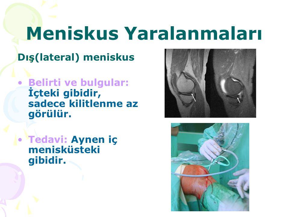 Meniskus Yaralanmaları Dış(lateral) meniskus Belirti ve bulgular: İçteki gibidir, sadece kilitlenme az görülür. Tedavi: Aynen iç menisküsteki gibidir.