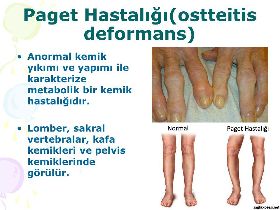 Paget Hastalığı(ostteitis deformans) Anormal kemik yıkımı ve yapımı ile karakterize metabolik bir kemik hastalığıdır. Lomber, sakral vertebralar, kafa