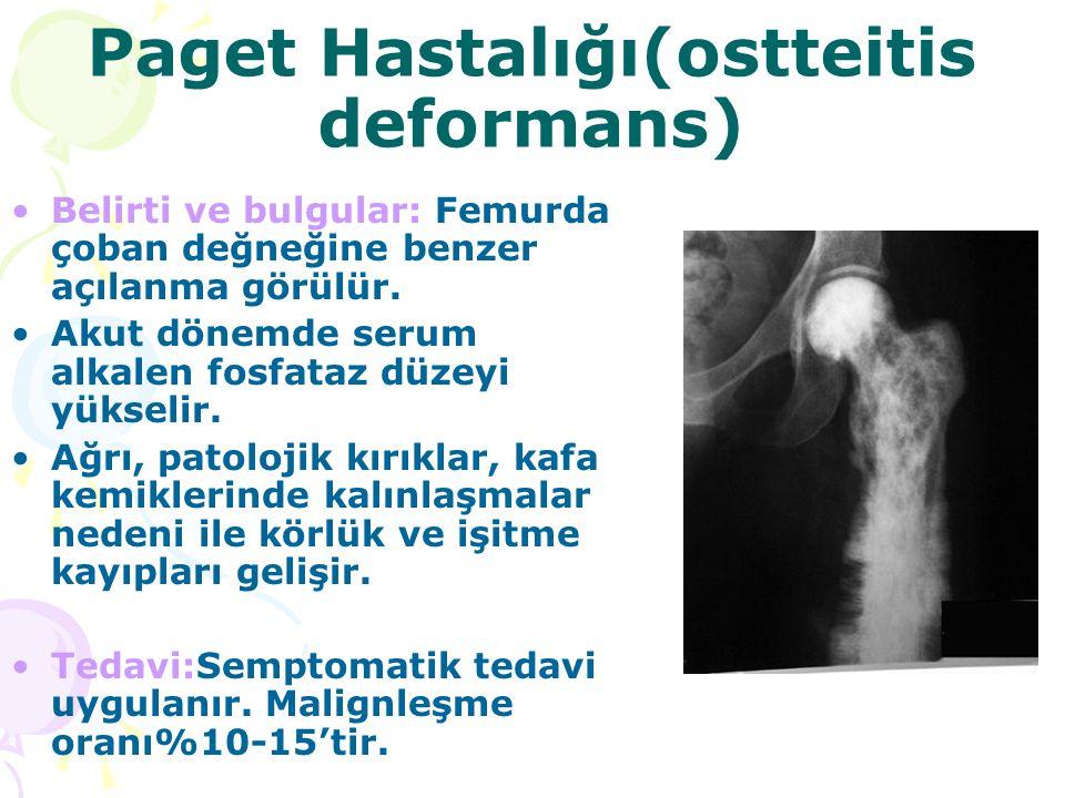 Paget Hastalığı(ostteitis deformans) Belirti ve bulgular: Femurda çoban değneğine benzer açılanma görülür. Akut dönemde serum alkalen fosfataz düzeyi