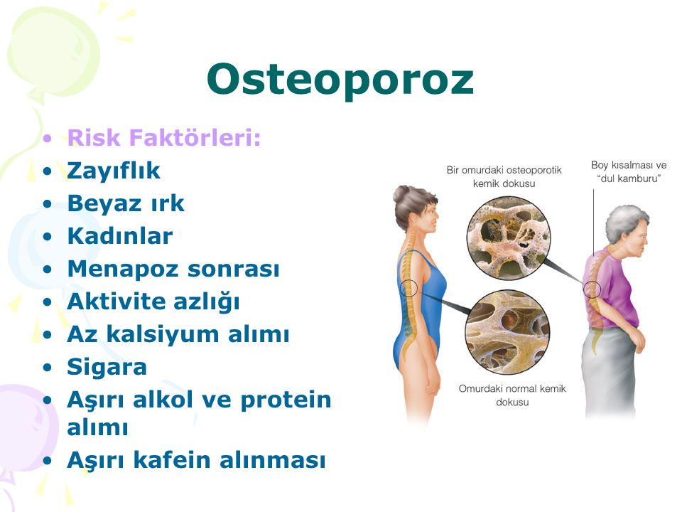 Osteoporoz Risk Faktörleri: Zayıflık Beyaz ırk Kadınlar Menapoz sonrası Aktivite azlığı Az kalsiyum alımı Sigara Aşırı alkol ve protein alımı Aşırı ka