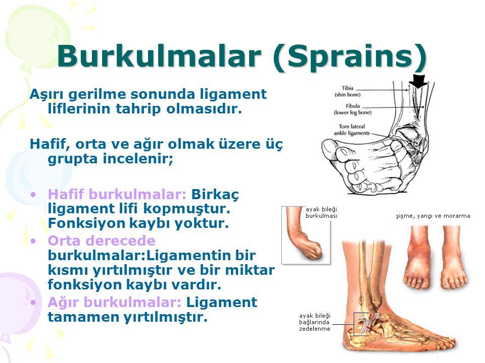 Burkulmalar (Sprains) Aşırı gerilme sonunda ligament liflerinin tahrip olmasıdır. Hafif, orta ve ağır olmak üzere üç grupta incelenir; Hafif burkulmal