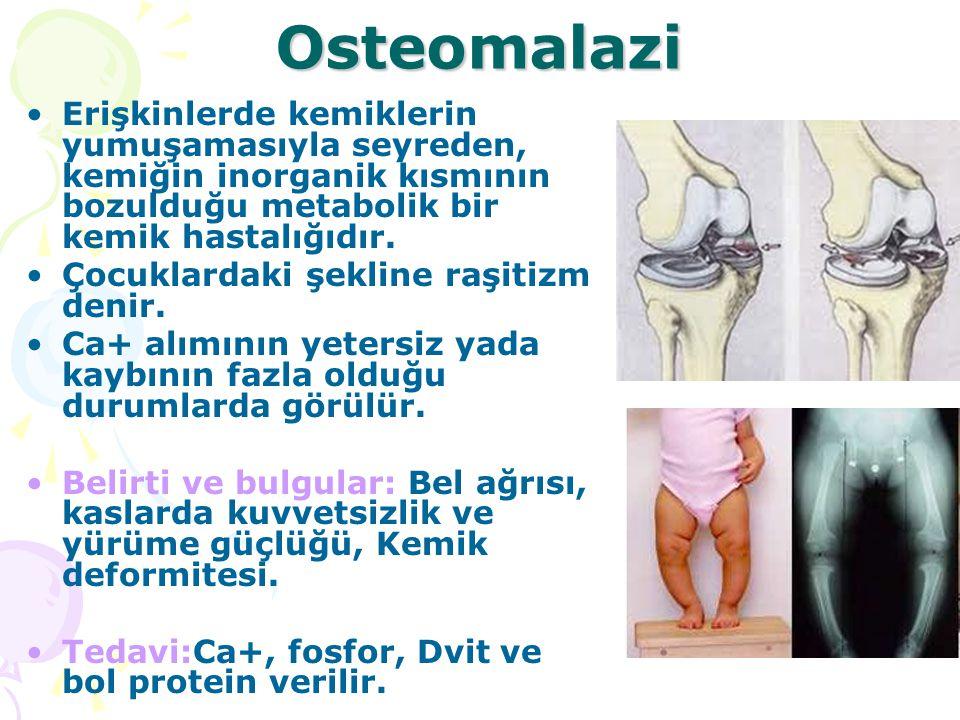 Osteomalazi Erişkinlerde kemiklerin yumuşamasıyla seyreden, kemiğin inorganik kısmının bozulduğu metabolik bir kemik hastalığıdır. Çocuklardaki şeklin