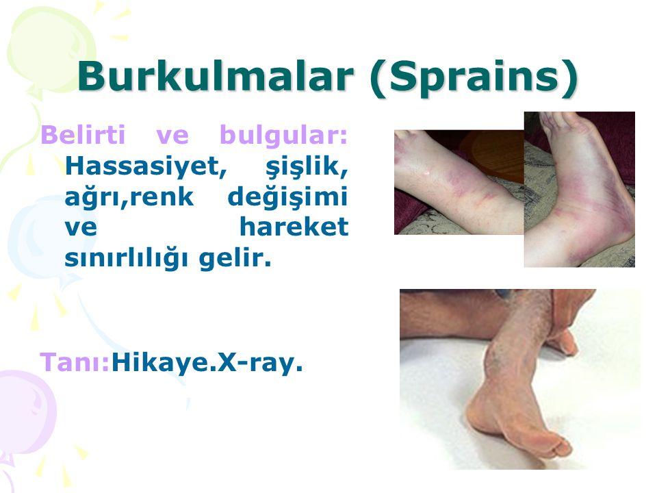 Burkulmalar (Sprains) Belirti ve bulgular: Hassasiyet, şişlik, ağrı,renk değişimi ve hareket sınırlılığı gelir. Tanı:Hikaye.X-ray.