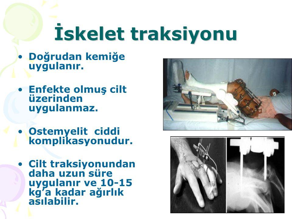 İskelet traksiyonu Doğrudan kemiğe uygulanır. Enfekte olmuş cilt üzerinden uygulanmaz. Ostemyelit ciddi komplikasyonudur. Cilt traksiyonundan daha uzu
