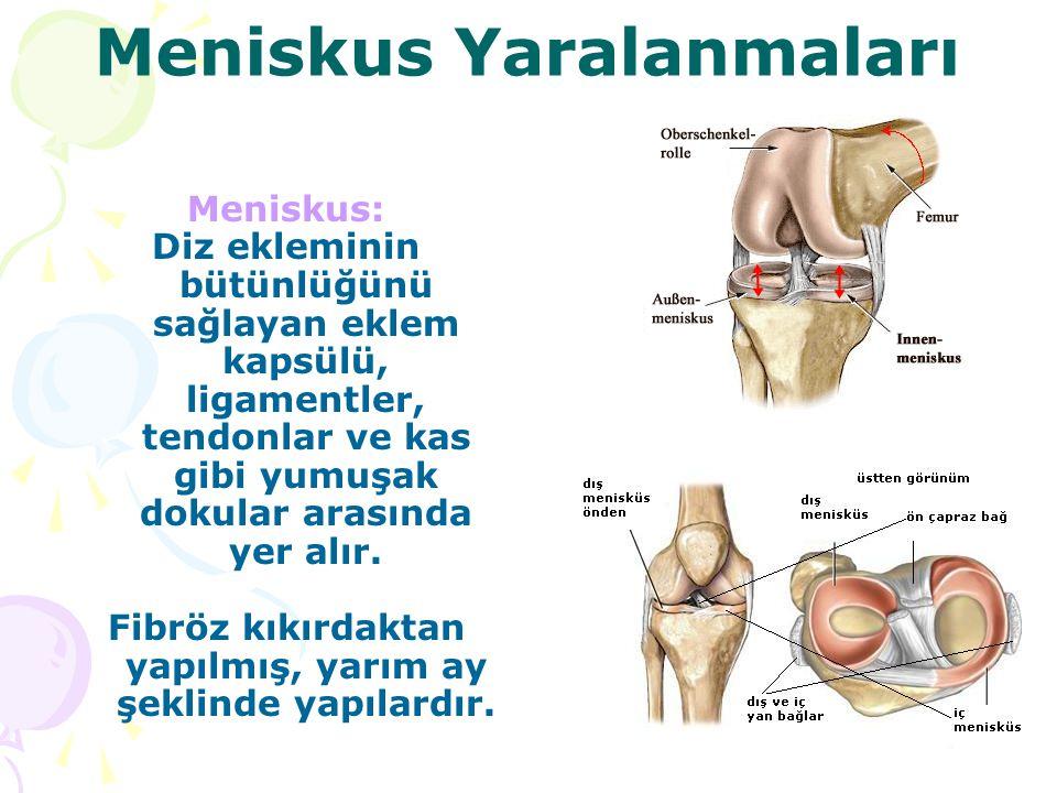 Meniskus Yaralanmaları Meniskus: Diz ekleminin bütünlüğünü sağlayan eklem kapsülü, ligamentler, tendonlar ve kas gibi yumuşak dokular arasında yer alı