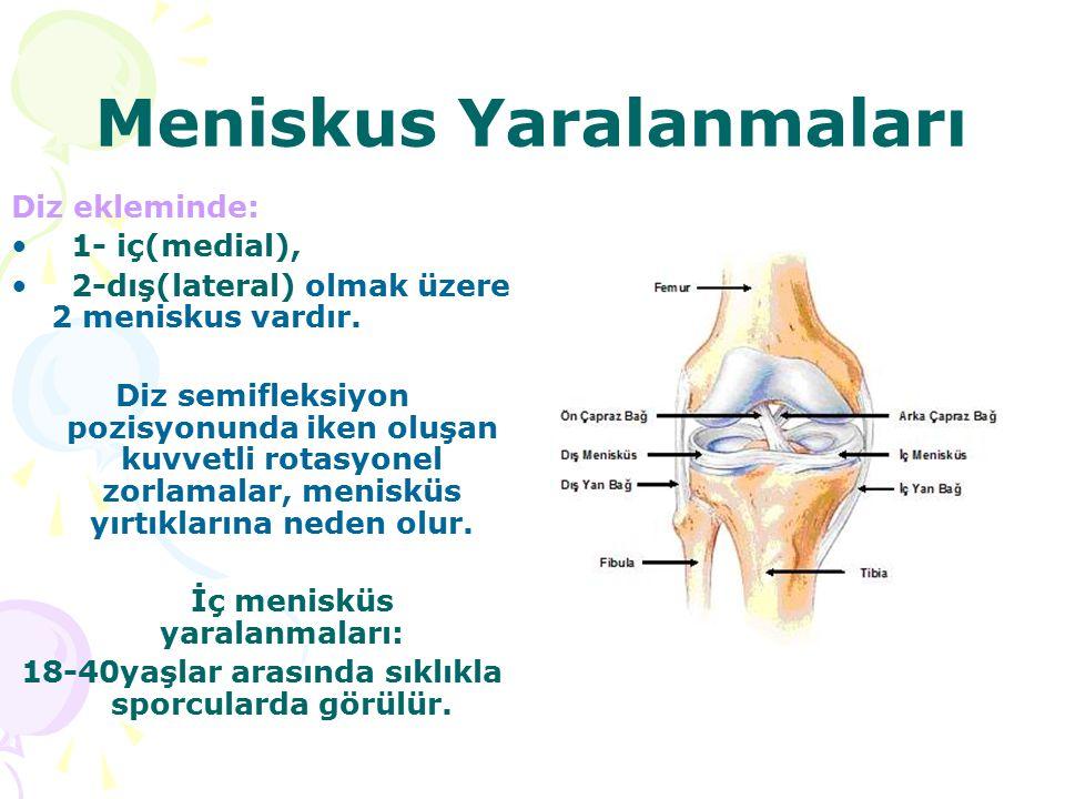 Meniskus Yaralanmaları Diz ekleminde: 1- iç(medial), 2-dış(lateral) olmak üzere 2 meniskus vardır. Diz semifleksiyon pozisyonunda iken oluşan kuvvetli