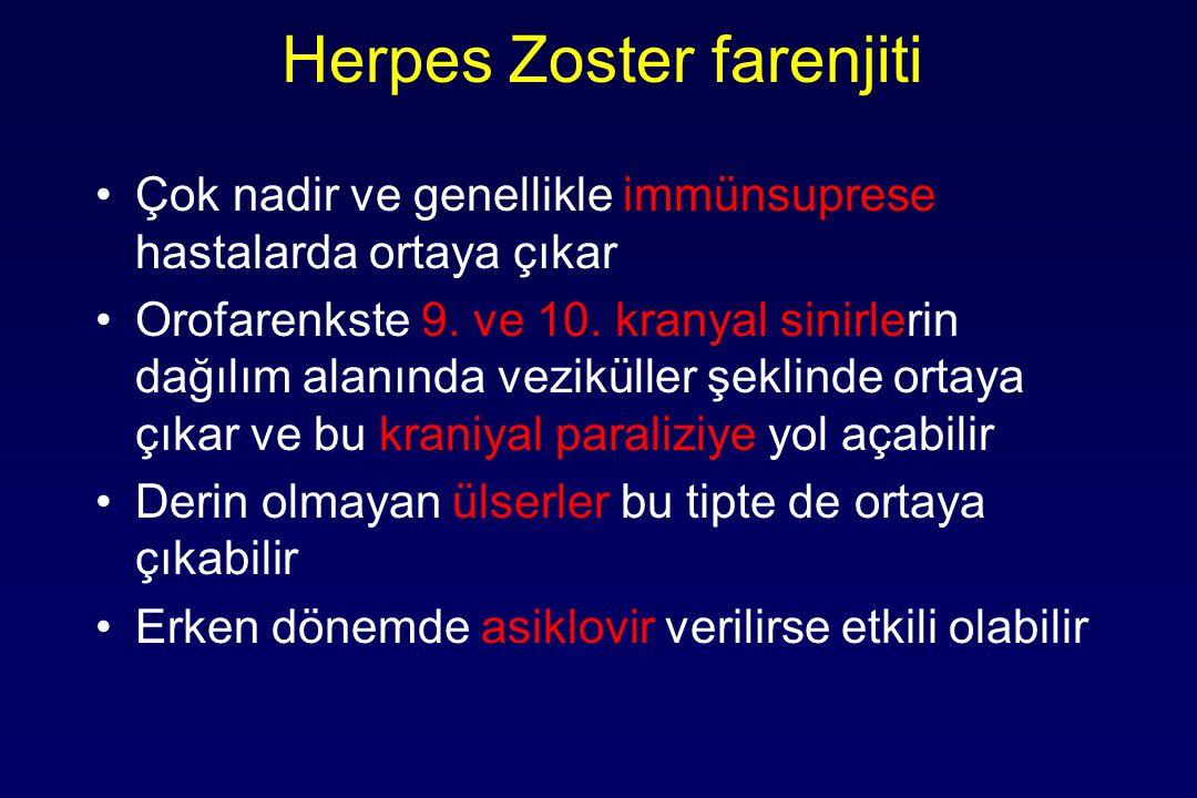 Herpes Zoster farenjiti Çok nadir ve genellikle immünsuprese hastalarda ortaya çıkar Orofarenkste 9.