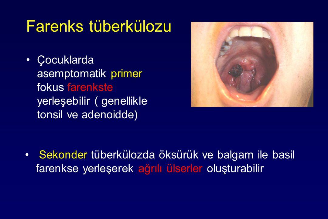 Farenks tüberkülozu Çocuklarda asemptomatik primer fokus farenkste yerleşebilir ( genellikle tonsil ve adenoidde) Sekonder tüberkülozda öksürük ve balgam ile basil farenkse yerleşerek ağrılı ülserler oluşturabilir