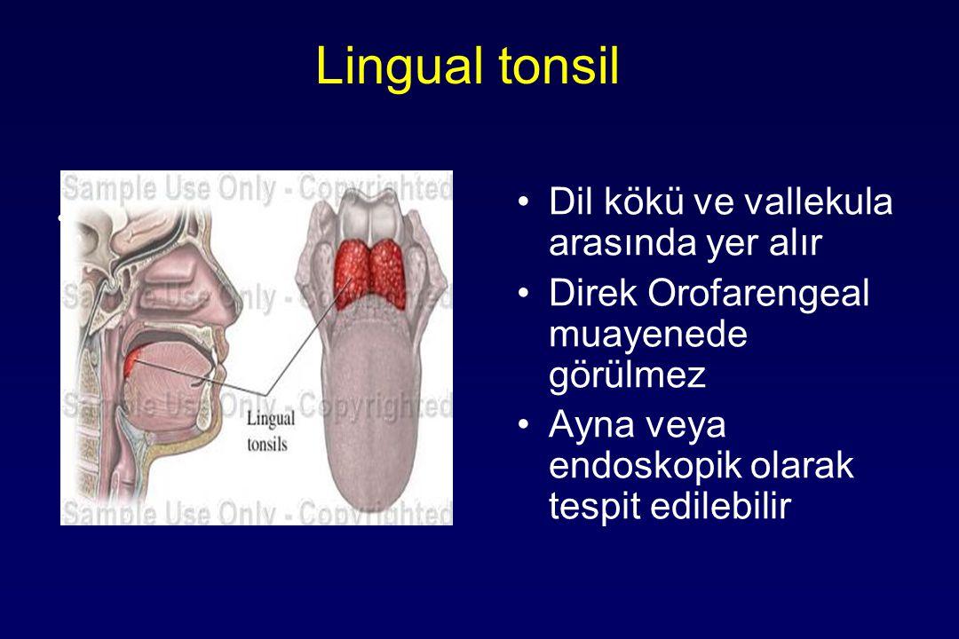 Lingual tonsil Dil kökü ve vallekula arasında yer alır Direk Orofarengeal muayenede görülmez Ayna veya endoskopik olarak tespit edilebilir