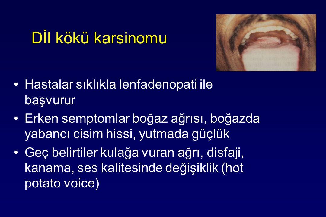 Dİl kökü karsinomu Hastalar sıklıkla lenfadenopati ile başvurur Erken semptomlar boğaz ağrısı, boğazda yabancı cisim hissi, yutmada güçlük Geç belirtiler kulağa vuran ağrı, disfaji, kanama, ses kalitesinde değişiklik (hot potato voice)
