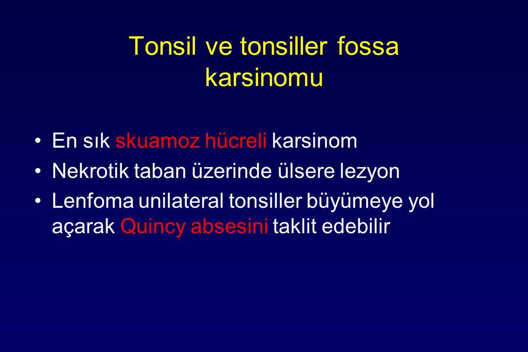 Tonsil ve tonsiller fossa karsinomu En sık skuamoz hücreli karsinom Nekrotik taban üzerinde ülsere lezyon Lenfoma unilateral tonsiller büyümeye yol açarak Quincy absesini taklit edebilir