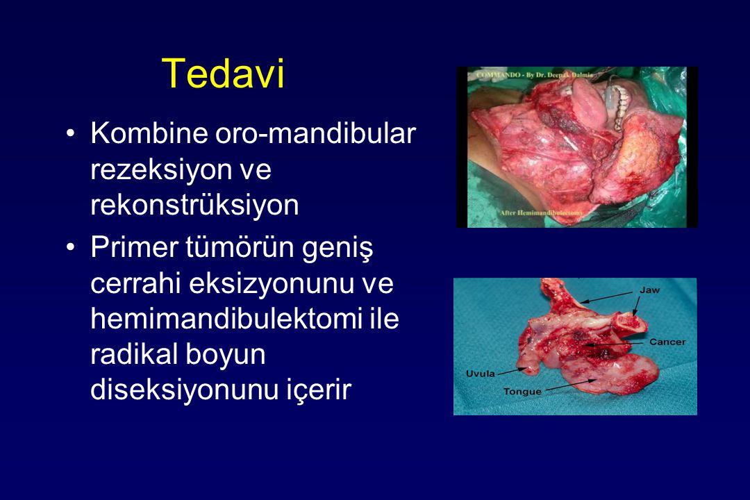 Tedavi Kombine oro-mandibular rezeksiyon ve rekonstrüksiyon Primer tümörün geniş cerrahi eksizyonunu ve hemimandibulektomi ile radikal boyun diseksiyonunu içerir