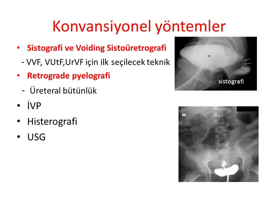 CT Helikal CT MRI - yumuşak doku kontrast ve multiple plan MRI konvansiyel yöntemlerin yetersiz kaldığı vakalarda ki seçenek